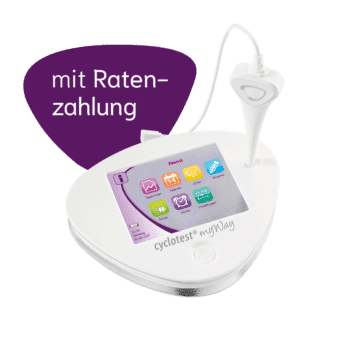 cyclotest myWay mit Ratenzahlung.