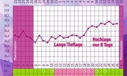Die Temperaturkurve bei Gelbkörperschwäche mit einer verkürzten zweiten Zyklushälfte.