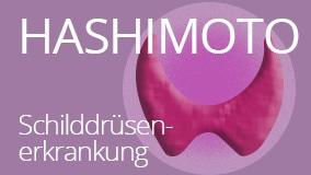 Hashimoto - Was ist die Ursache?