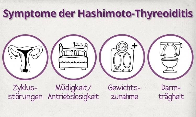 Die 4 häufigsten Symptome der Hashimoto-Thyreoiditis.