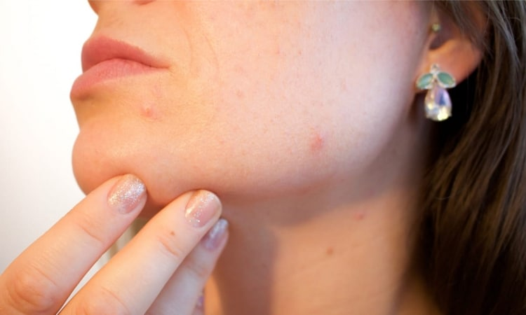 Hautunreinheiten und Pickel nach dem Beenden der Pilleneinnahme