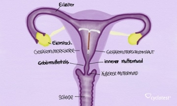 Die Kupferspirale zählt zur hormonfreien Verhütung.