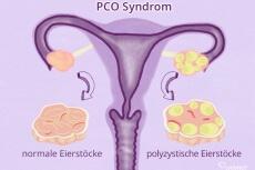 Polyzystische Eierstöcke beim PCO Syndrom.