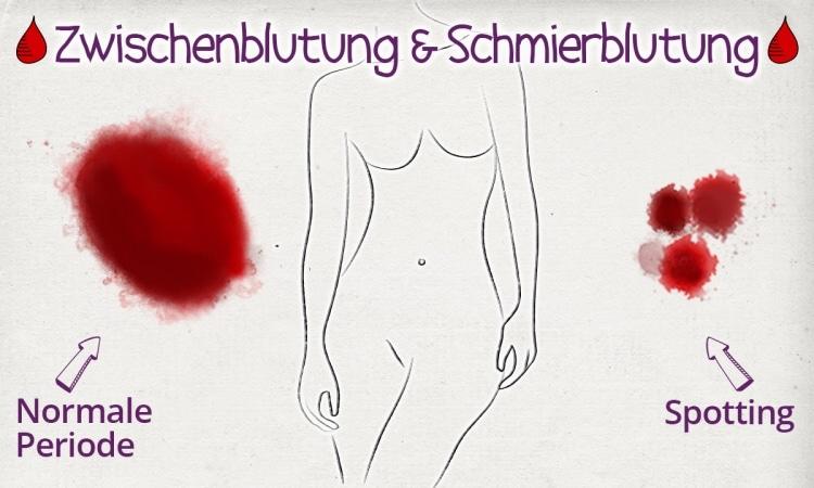 Unter Schmierblutung, auch Zwischenblutung oder Spotting genannt, leiden viele Frauen.